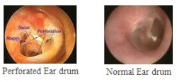 Perforated Ear Drum - Ear Drum Perforation